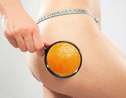 The battle against cellulite