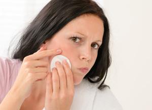 Essential oils to beat acne