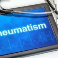Rheumatism can be helped using only safe and natural methods