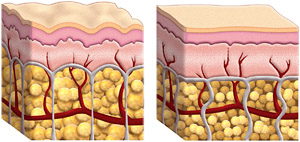 Cellulite fat cells and normal fat cells